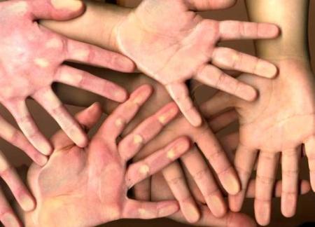 Mãos & dedos